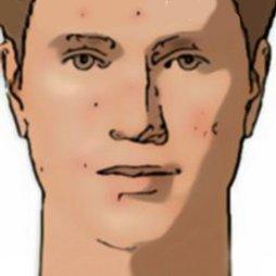 Pieles acnéicas