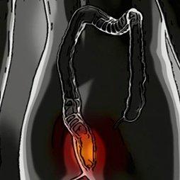 Antihemorroidales
